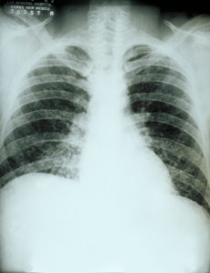 """Chest X-ray acute pulmonary histoplasmosis PHIL 3954"" by CDC/M. Renz - This media comes from the Centers for Disease Control and Prevention's Public Health Image Library (PHIL), with identification number #3954.Note: Not all PHIL images are public domain; be sure to check copyright status and credit authors and content providers.English 